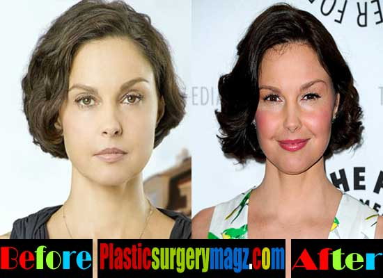 Ashley Judd Before and After Plastic Surgery