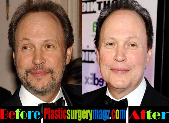 Billy Crystal Facelift Surgery Before and After