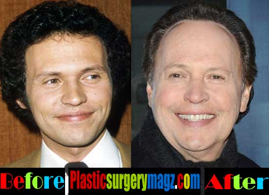 Billy Crystal Plastic Surgery Before and After