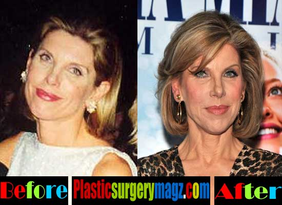 Christine Baranski Before and After Plastic Surgery