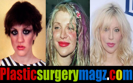 Courtney Love Plastic Surgery Before and After