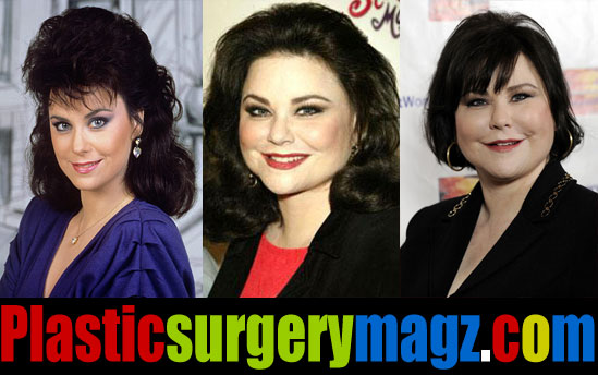 Delta Burke Plastic Surgery Before and After
