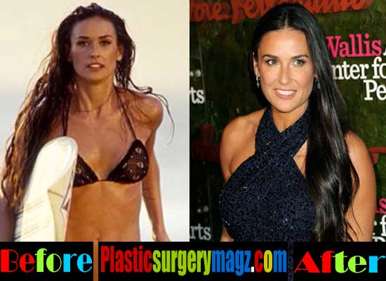 Demi Moore Breast Implant Before and After