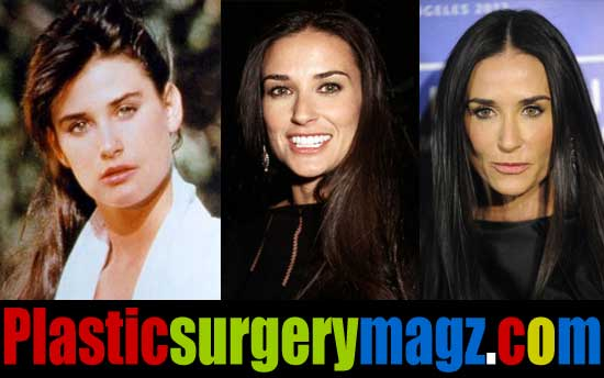 Demi Moore Plastic Surgery Before And After Plastic