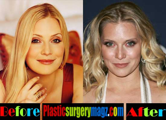 Emily Procter Before and After Plastic Surgery