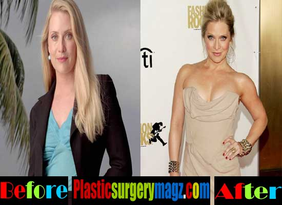Emily Procter Breast Implants Before and After