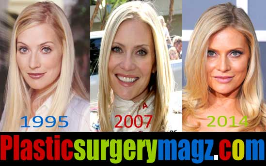 Emily procter plastic surgery before after consider, that