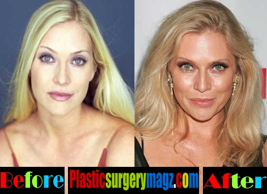 Emily Procter Plastic Surgery Botox Injection
