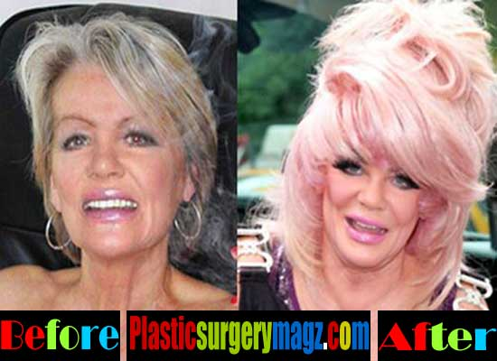 Jan Crouch Plastic Surgery Before and After