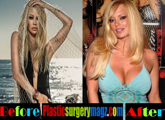 Jenna Jameson Breast Implant Before and After