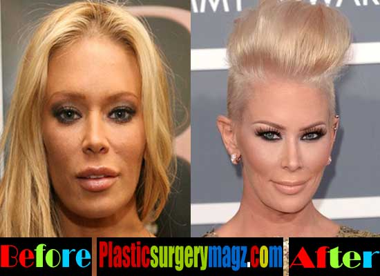 Jenna Jameson Nose Job Before and After