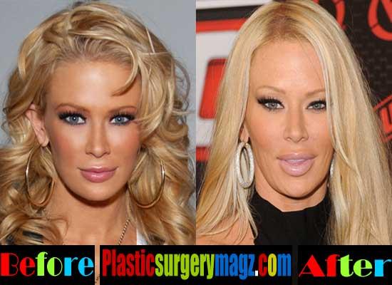Jenna Jameson Plastic Surgery Lips Filler Injection