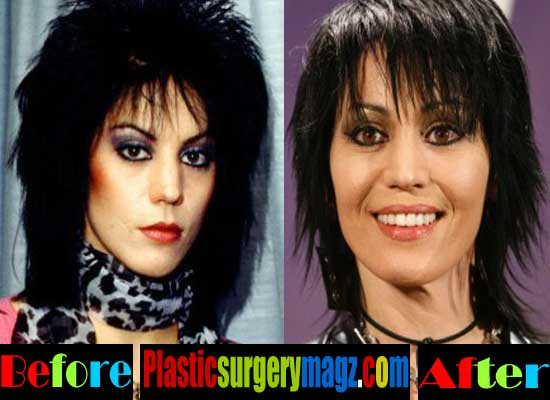 Joan Jett Facelift Before and After