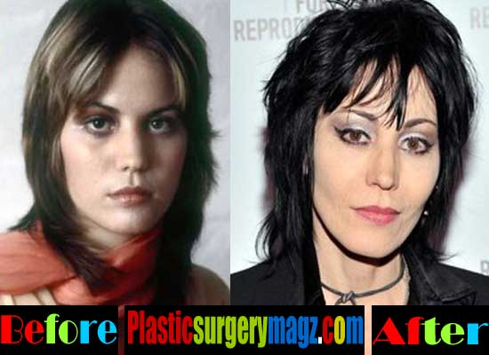 Joan Jett Nose Job Before and After