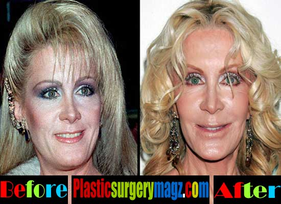 Joan Van Ark Plastic Surgery Gone Wrong