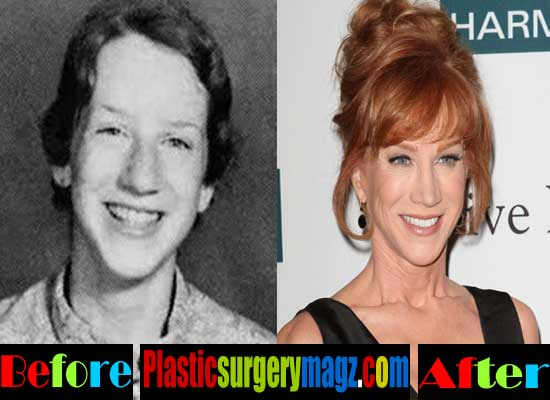 Kathy Griffin Nose Job Before and After