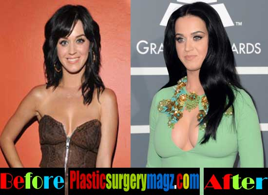Katy Perry Breast Implant Before and After