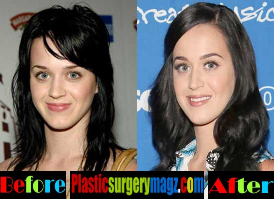 Katy Perry Nose Job Before and After