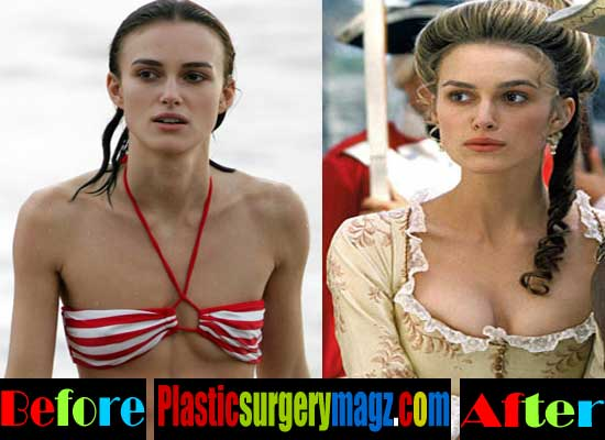 Keira Knightley Breast Implant Before and After