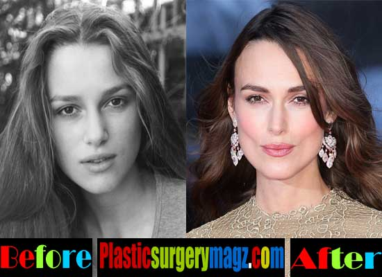 Keira Knightley Nose Job Before and After