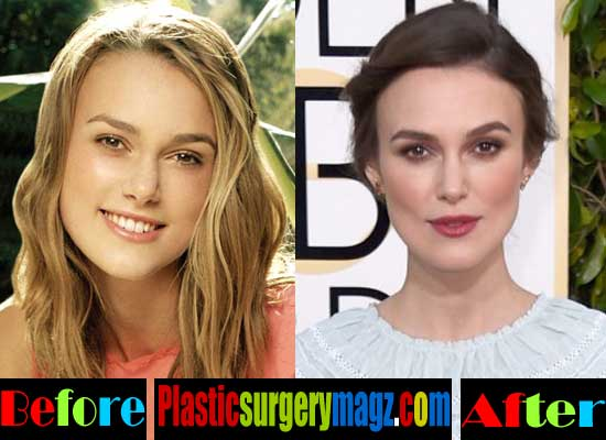 Keira Knightley Plastic Surgery Lips Augmentation