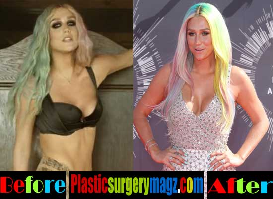 Kesha Breast Implants Before and After