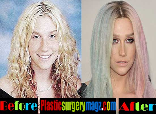 Kesha Nose Job Before and After
