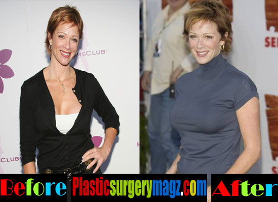 Lauren Holly Breast Implant Before and After