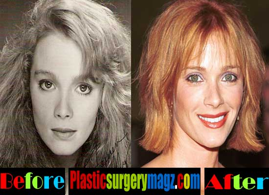 Lauren Holly Nose Job Before and After