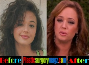 Leah Remini Before and After Plastic Surgery