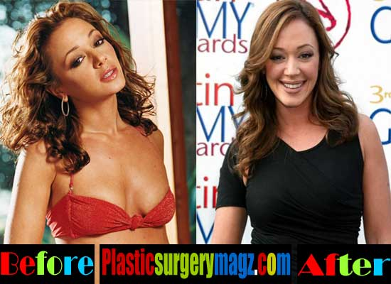 Leah Remini Breast Implants Before and After