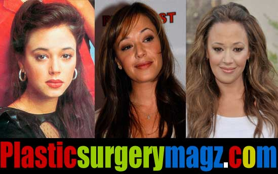 Leah Remini Plastic Surgery Before and After