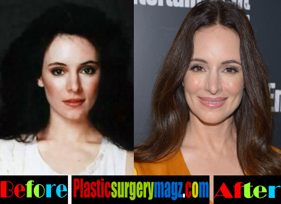 Madeleine Stowe Before and After Plastic Surgery