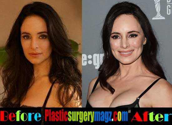 Madeleine Stowe Plastic Surgery Botox Injection