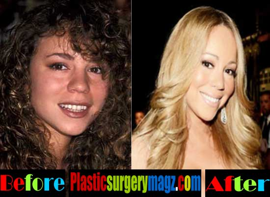 Mariah Carey Nose Job Before and After