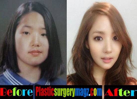 Park Min Young Nose Job Before and After