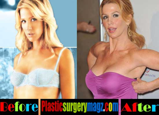 Poppy Montgomery Breast Implants Before and After
