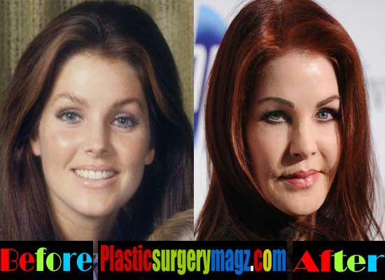 Priscilla Presley Bad Plastic Surgery