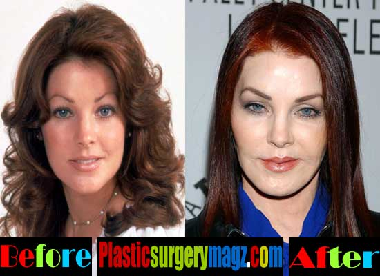 Priscilla Presley Botched Plastic Surgery