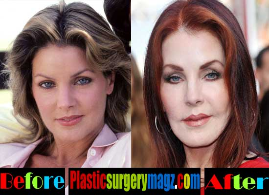 Priscilla Presley Plastic Surgery Disaster Plastic
