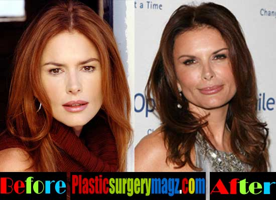 Roma Downey Before and After Photos