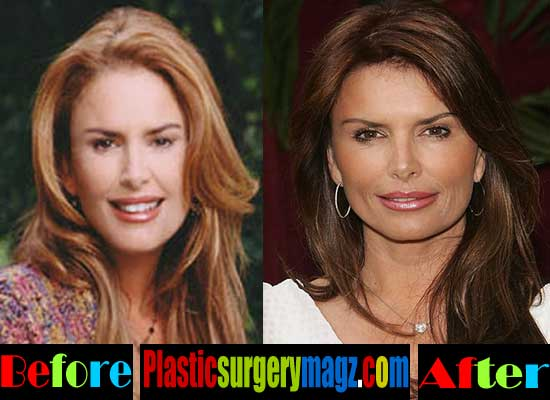 Roma Downey Before and After Plastic Surgery