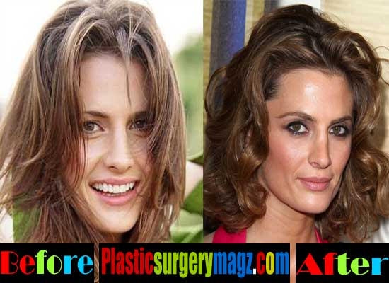 Stana Katic Plastic Surgery Before and After