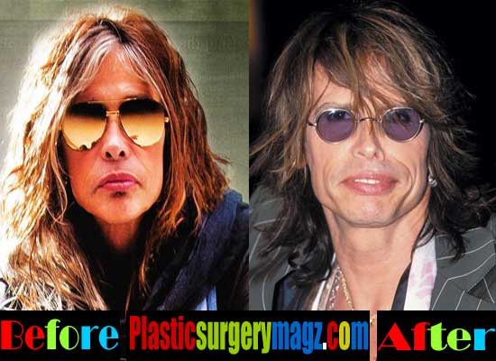 Steven Tyler Facelift Surgery