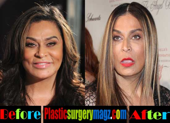 Tina Knowles Facelift Before and After