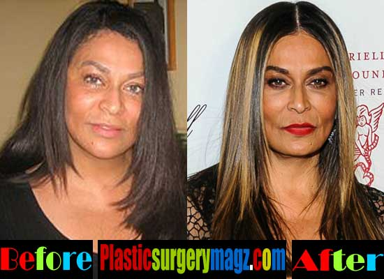 Tina Knowles Nose Job Before and After