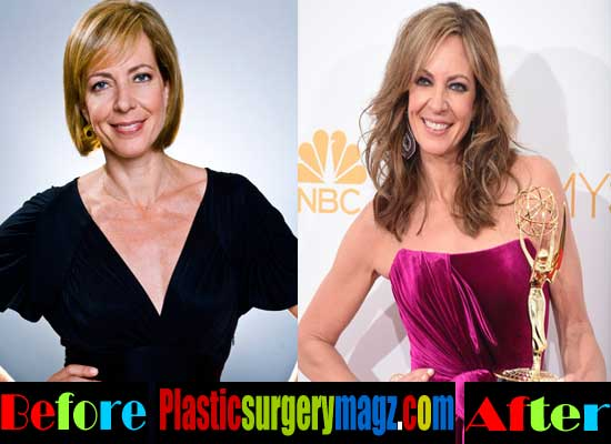 Allison Janney Breast Implants Before and After