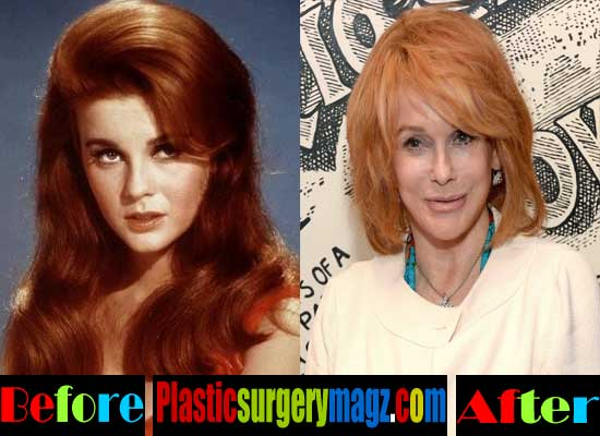 Ann Margret Facelift Before and After