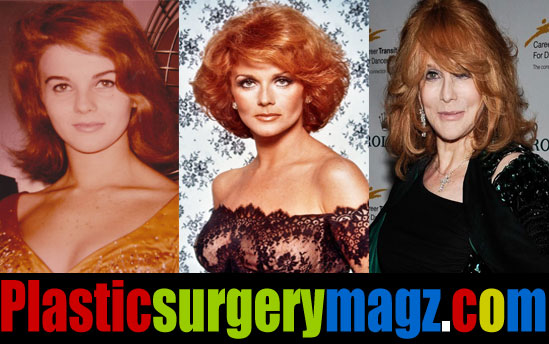 Ann Margret Plastic Surgery Before and After