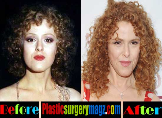 Bernadette Peters Before and After Plastic Surgery